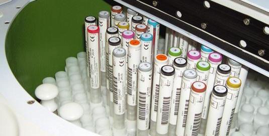 Molekulare Allergiediagnostik Reagenzien für Allergietest im Blut