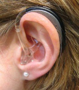 unmodernes Hörgerät HdO