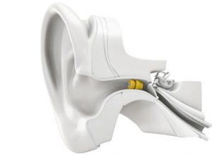 winzige Hörgeräte im Gehörgang
