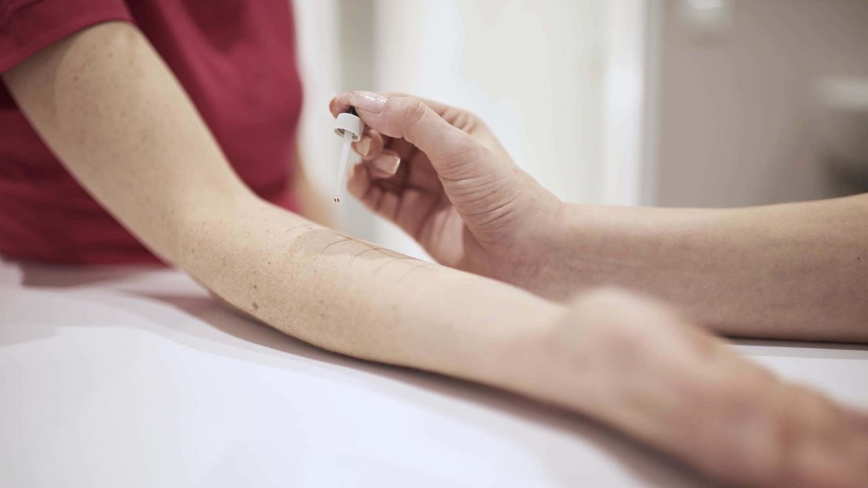 Allergietest auf der Haut - Pricktest - Hals Nasen Ohrenarzt Dr. Weinzierl Nürnberg