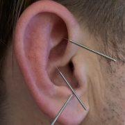 Akupunktur hilft bei Allergie, Heuschnupfen. Ohrakupunktur Nadeln