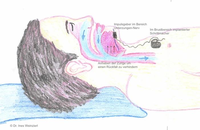 Zungenschrittmacher, Funktionsprinzip der Hypoglossusnervstimulation HNS
